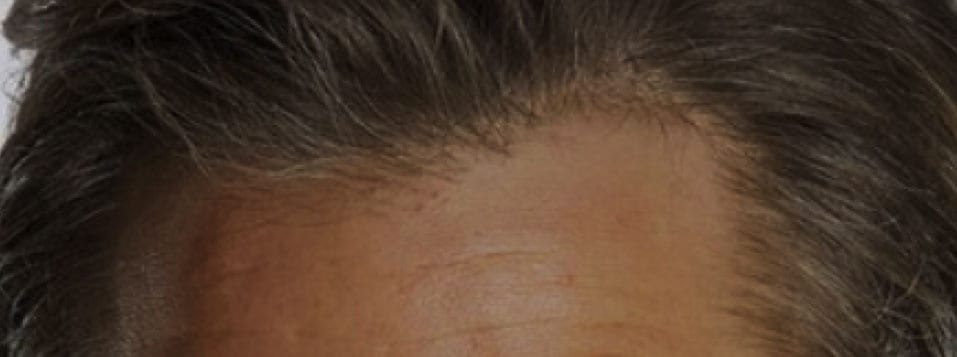 forehead with hair