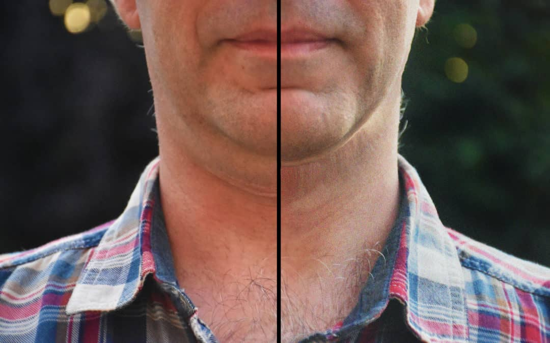 How to Remove a Double Chin in Photoshop
